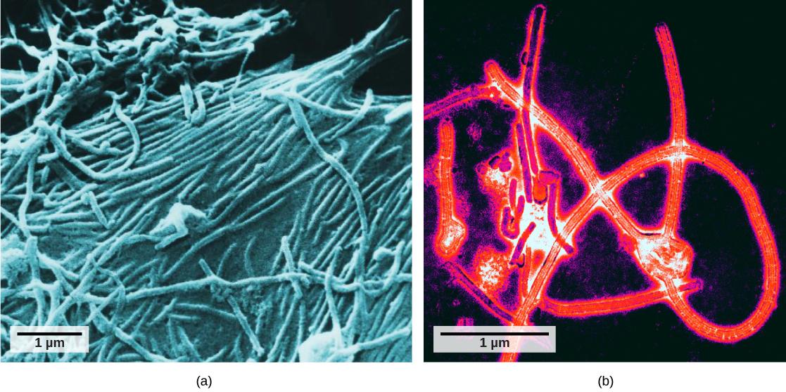 Feléledhetnek a DNS-ünkbe rég eltemetett vírusok, és komoly betegségeket okozhatnak