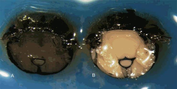 Két méh béltraktusának összehasonlítása - a jobb oldali egy egészséges, tiszta vidékről száramzik, a baloldali egy vegyszerekkel és rovarirtóval kezelt földről