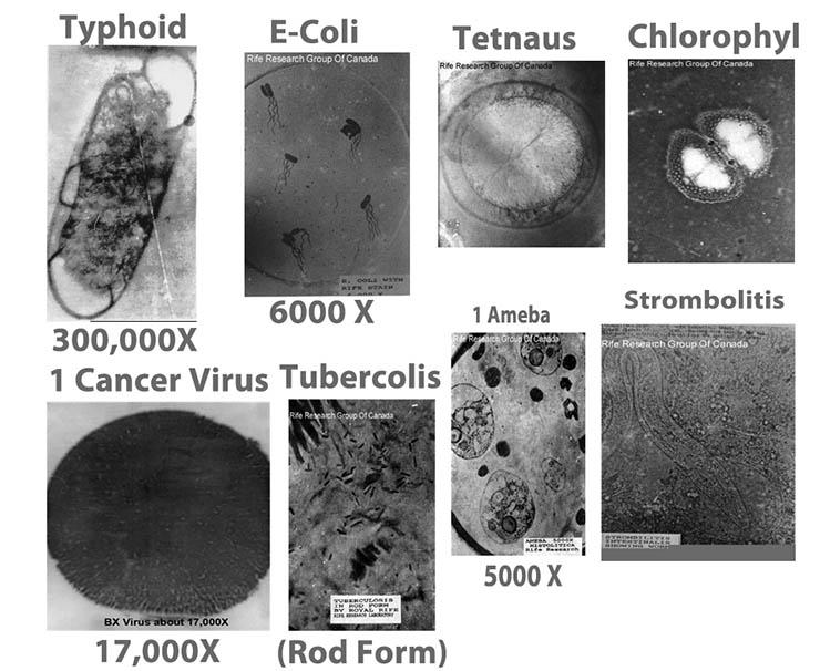 virus-kollekcio-royal-rife