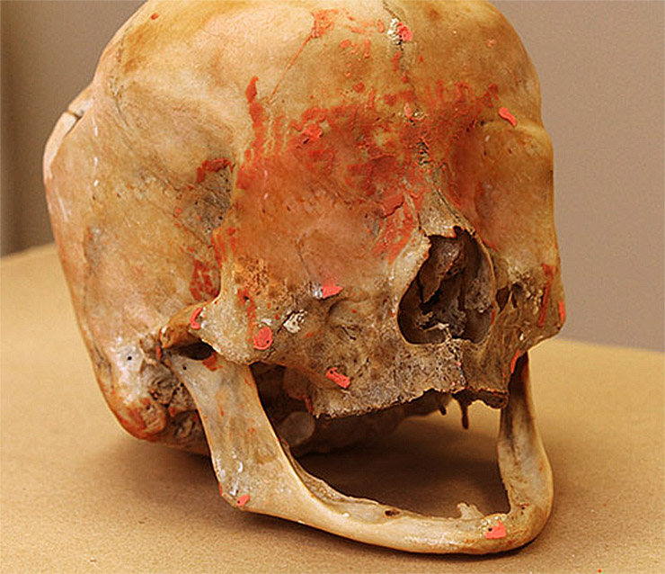 vakondember-koponya