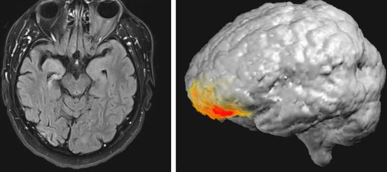 agyi-aktivitas-isten