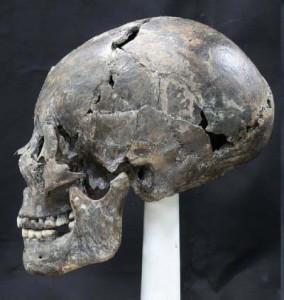 hosszukas-koponya