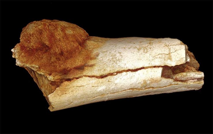 rakos-csont-osember