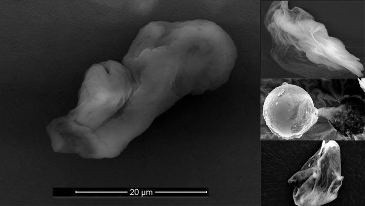 foldonkivuli-mikrobak